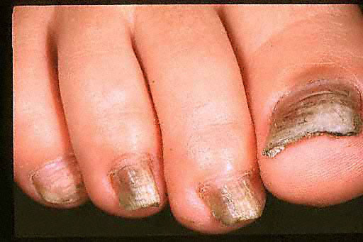 Black Toenail: Causes and Treatment - Fight Nail Fungus