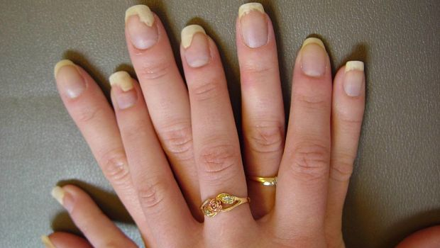 Different Nail Fungus Treatment Options And Which Is Right For You