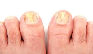 toenail_fungus